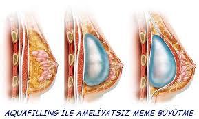 Göğüs büyütme ameliyatı, ameliyatsız göğüs büyütme, göğüs sarkmaları