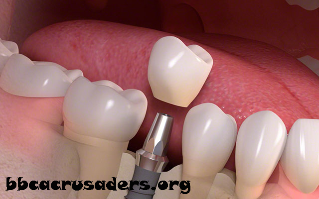 İmplant nasıl uygulanır, kanal tedavi, Estetik diş hekimliği