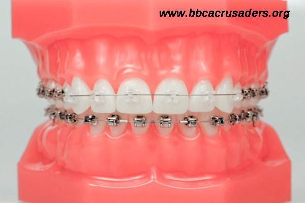 Diş teli nasıl takılır ve kimlere uygulanabilir?