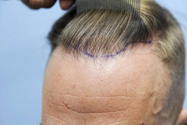 saç ekim fiyatları, saç ekim fiyatları neden değişir, saç ekim fiyatları ne kadar