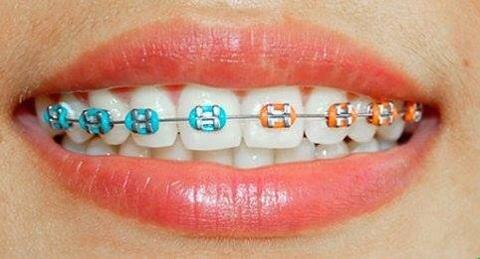 Ortodonti Neler Yapar?