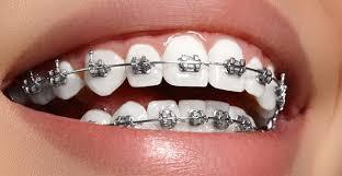Diş Teli Fiyatları 2018