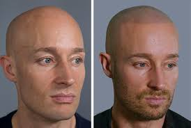 saç ekim merkezleri, en iyi saç ekim merkezi, saç ekim merkezlerinin güvencesi