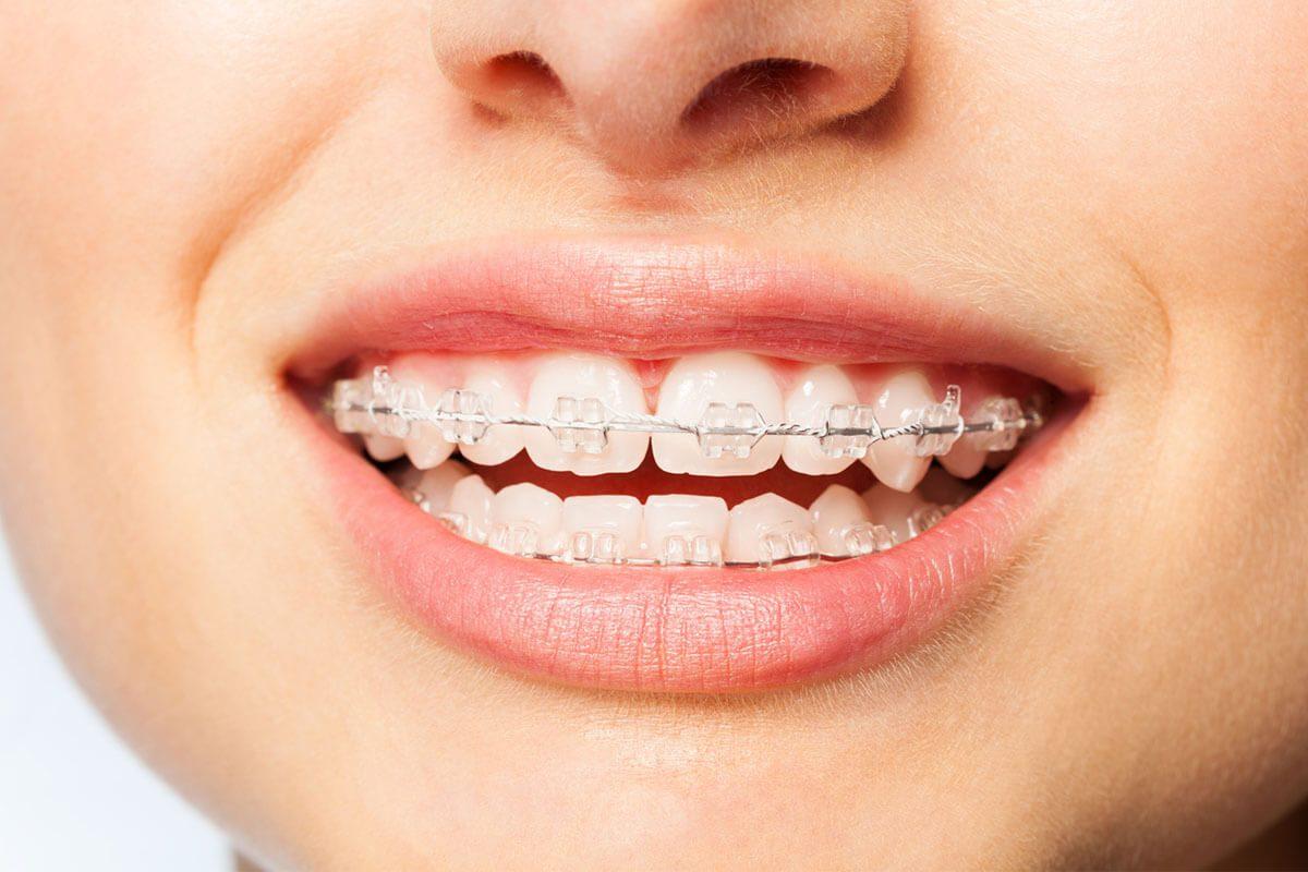 Şeffaf diş teli kimler için uygundur?