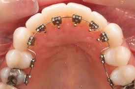 Ortodonti Tedavisi Nedir ve Nasıl Yapılır?