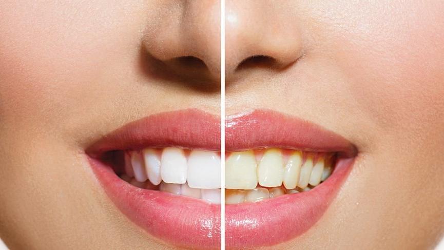 Diş Bakımı Yapma Yöntemleri