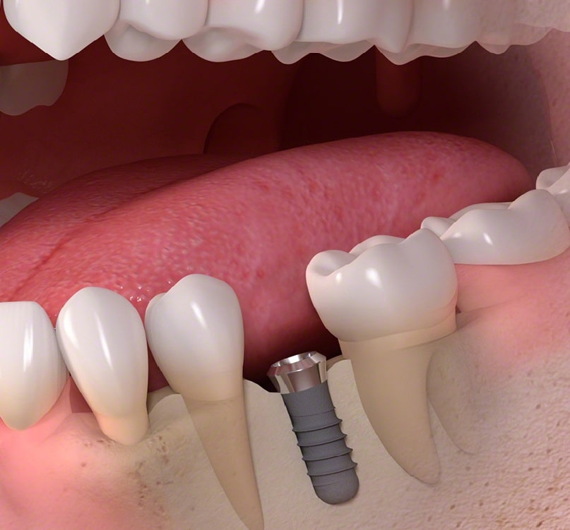 Vidalı Diş Uygulamaları Nelerdir?