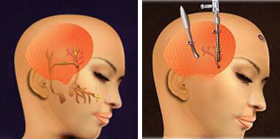 Migren ameliyatı nasıl yapılır?